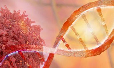 tumore perche si sviluppa